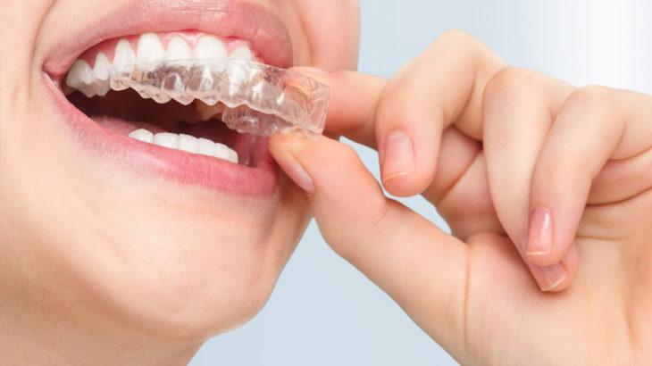 【調査】顎関節症にマウスピースが良いって本当?値段はどのくらい?